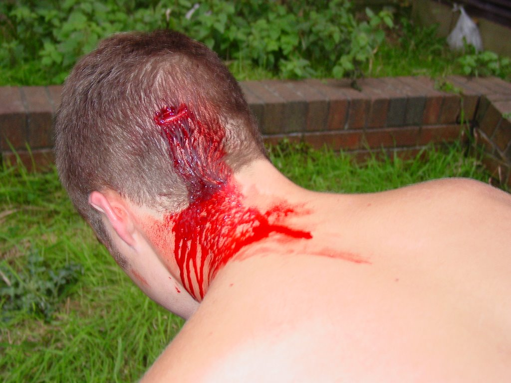 parkour head wound