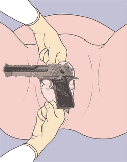 Image of surgical procedure to remove handgun from anus