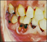Teeth with plaque and decay