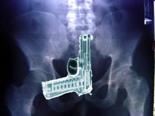 Xray of smuggled handgun