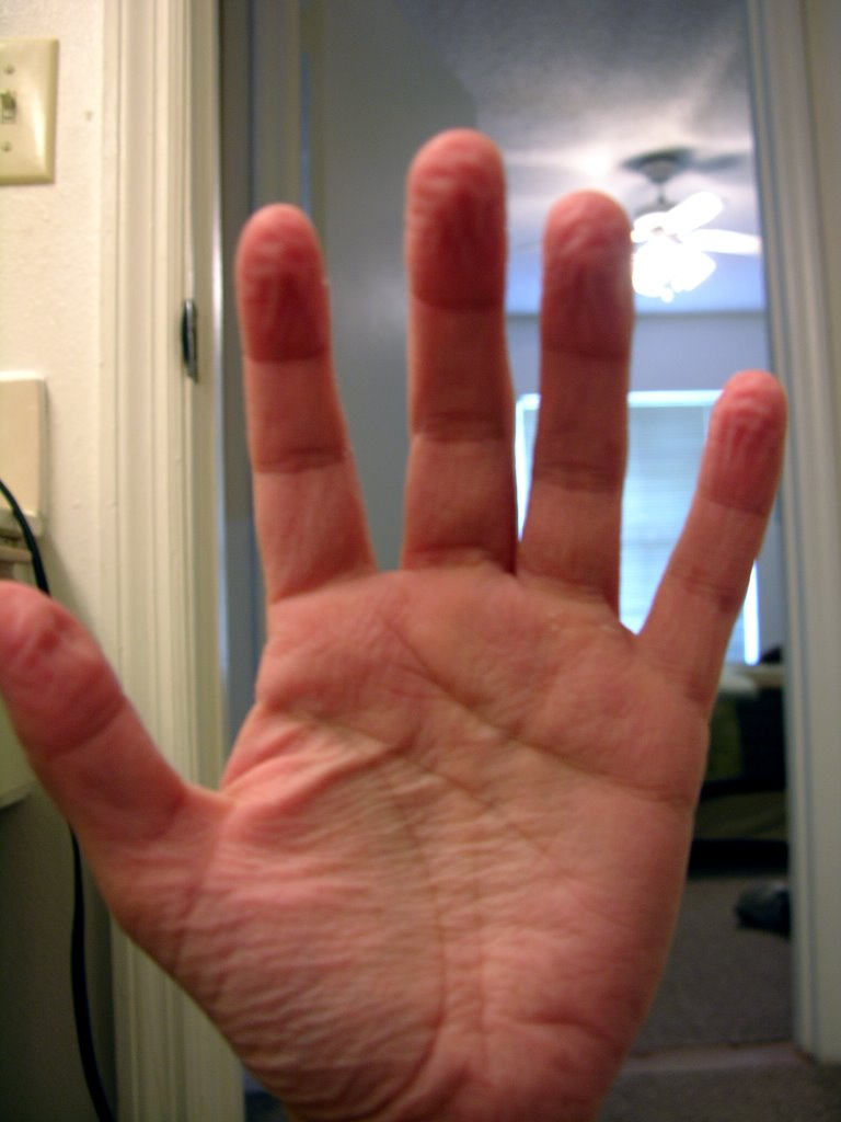 How to Know if You Have Hyperhidrosis