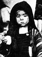 child scorched by Hiroshima blast