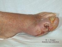 La eccema varicosa no es contagioso