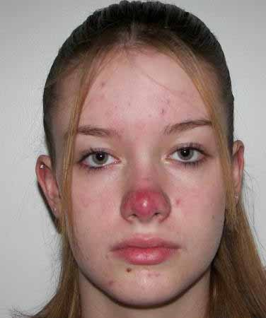 VIRTUAL GRAND ROUNDS IN DERMATOLOGY 2.0: Teenager with a ... Maggie Gyllenhaal Nose