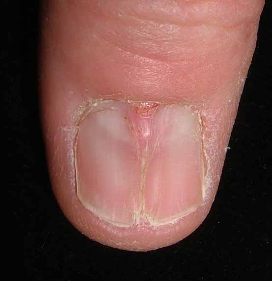 What Is Pterygium - Health - NAILS Magazine