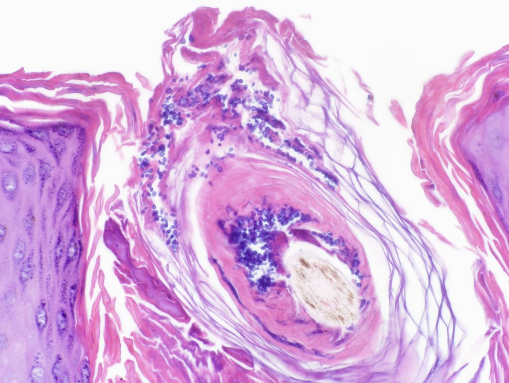 steroid acne histology