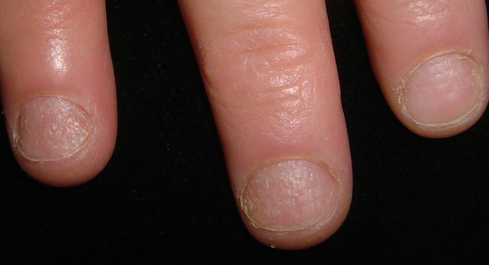 how to fix nail pitting alopecia