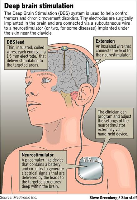 PACES MRCP UK - Where MRCPians Meet Since 2006: Brain ...
