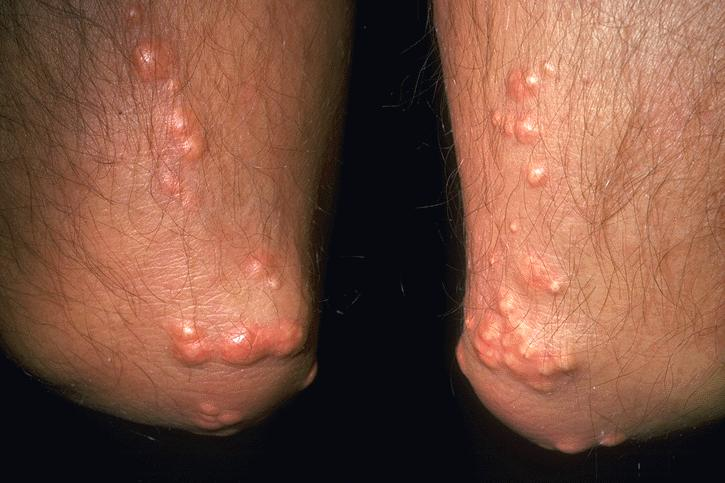 This brief overview explains the main types of psoriasis that affect your skin nails and joints 1