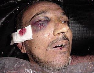 Dead Abu Ghraib detainee