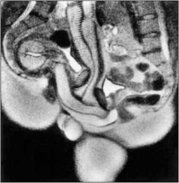 вагина в разрезе фото