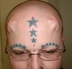 headimplants