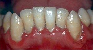gingivitis dental