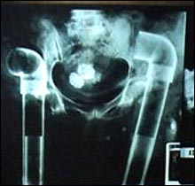 Body Snatchers x-ray