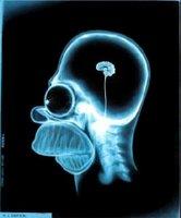 Cerebro de Homer