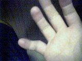 my dislocated finga