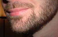 Hairy Chin
