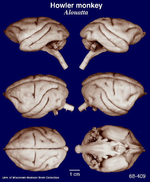 Anatomy Notes Wrinkles And Folds On The Brain