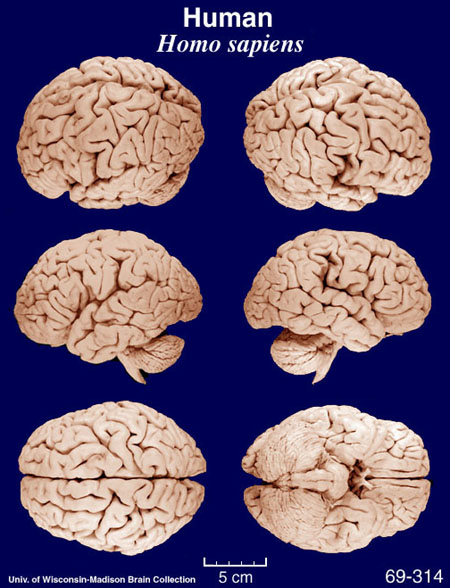 Anatomy Notes: Wrinkles and folds on the brain