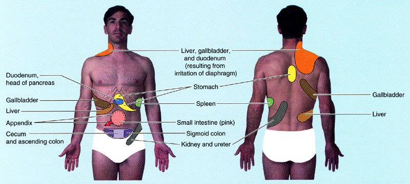 Illustration showing sites of referred pain from abdominal organs