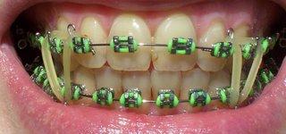 Nice braces 2