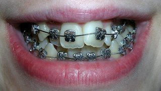 Nice braces 1