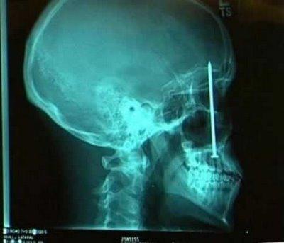 Bizarre X-Rays