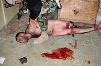 Washington Post: An Iraqi detainee appears to be restrained after having suffered injuries to both legs at Abu Ghraib.