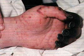 pseudomonas rash #10