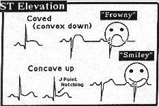 Clinical Notes What Is A Jpoint Elevation - Elevation point