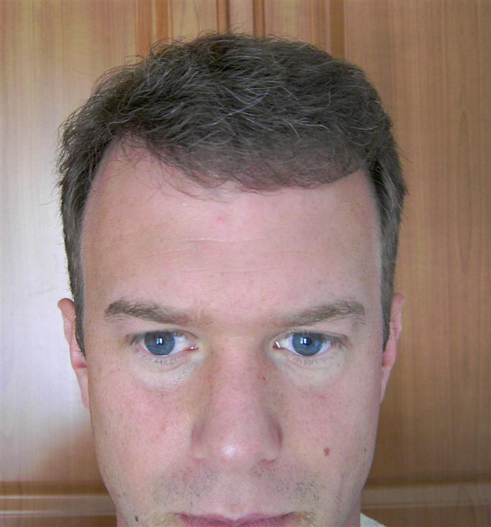 Hair Transplant Blog Bobmans Hair Loss Story Hair Transplant 1
