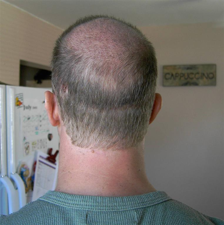 Hair Transplant Blog Bobmans Hair Loss Story July 2005