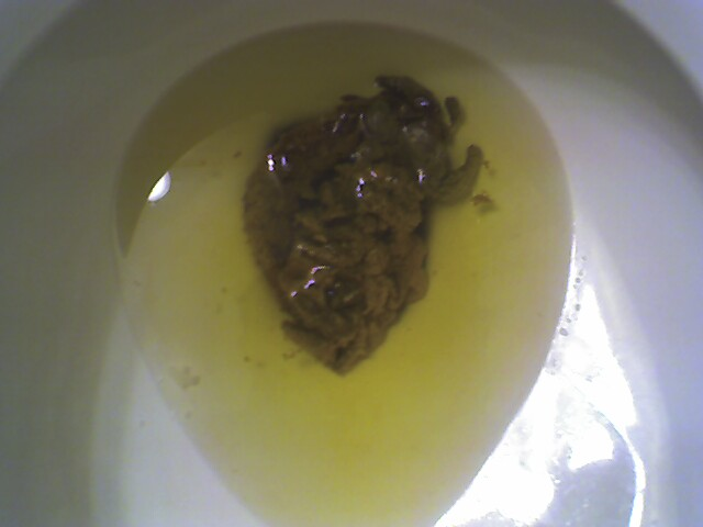 Undigested ... & Undigested Fat In Stool Pictures to Pin on Pinterest - PinsDaddy islam-shia.org