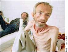 Bosniak (Muslim) Civilian in Serb-run Concentration Camp Trnopolje
