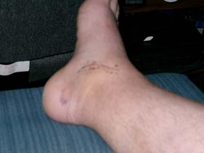 Ankle scar