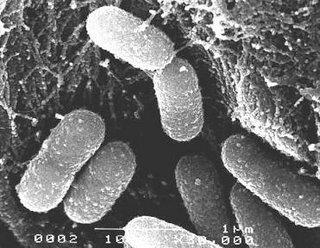 Bacterias vistas al microscopio electrónico