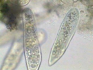 Paramecium, protozoo al microscopio electrónico