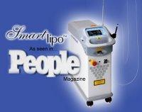 Smartlipo™ laser