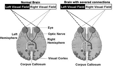 Field notes from an evolutionary psychologist split brain the right half of each eyes retina projects to the right hemosphere shown in dark grey in the diagram above while the left half of each retina white ccuart Gallery