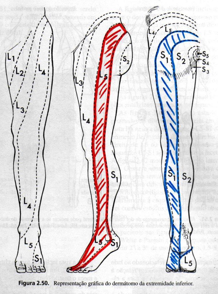 cirurgia coluna lombar