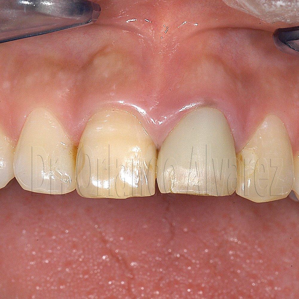 Las manchas de pigmento sobre la persona al niño el tratamiento