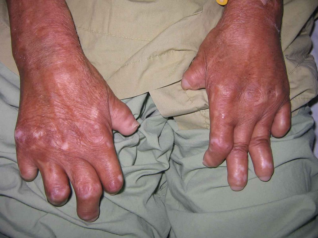 leprosy hanson s disease How to cure leprosy leprosy, also known as hansen's disease, is a bacterial disease that can cause skin lesions, disfiguration, damage to the nerves and eyes, and other problems fortunately, the disease is treatable with medication if.