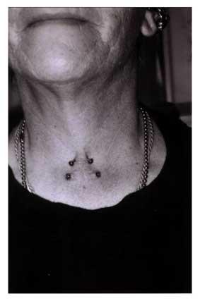 Piercings et tatouages histoire et signification piercings de surface - Tatouage larme signification ...