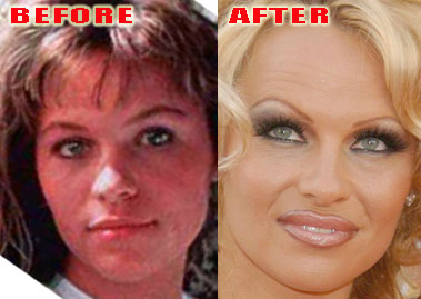 forever trendy awful plastic surgery