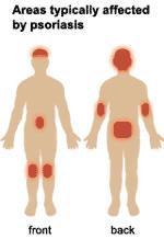Las diferencias atopicheskogo de la dermatitis de la dermatitis de contacto