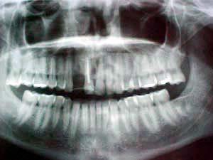 Apuntes y tareas de odontolog a rayos x for Cuarto de rayos x odontologia