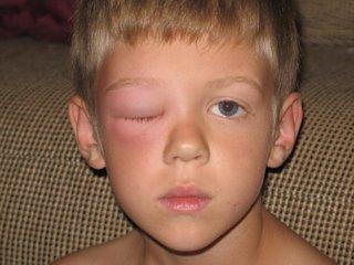Clark's swollen eye