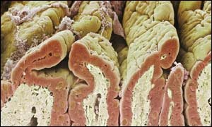small intestine where food is digested