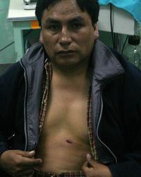 no, taytachas, éste señor no soy yo. es el tercer herido de bala, el más leve. foto: EFE