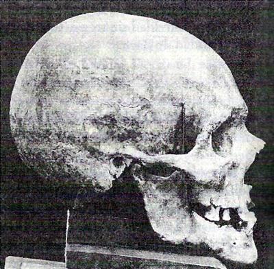 Calavera de J. S. Bach, fotografiada por Wilhelm His